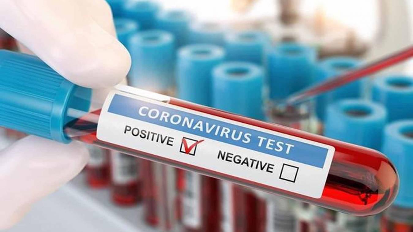 वाराणसी: रविवार सुबह फिर मिले 15 कोरोना पॉजिटिव, लगातार बढ़ रही संक्रमितों की संख्या