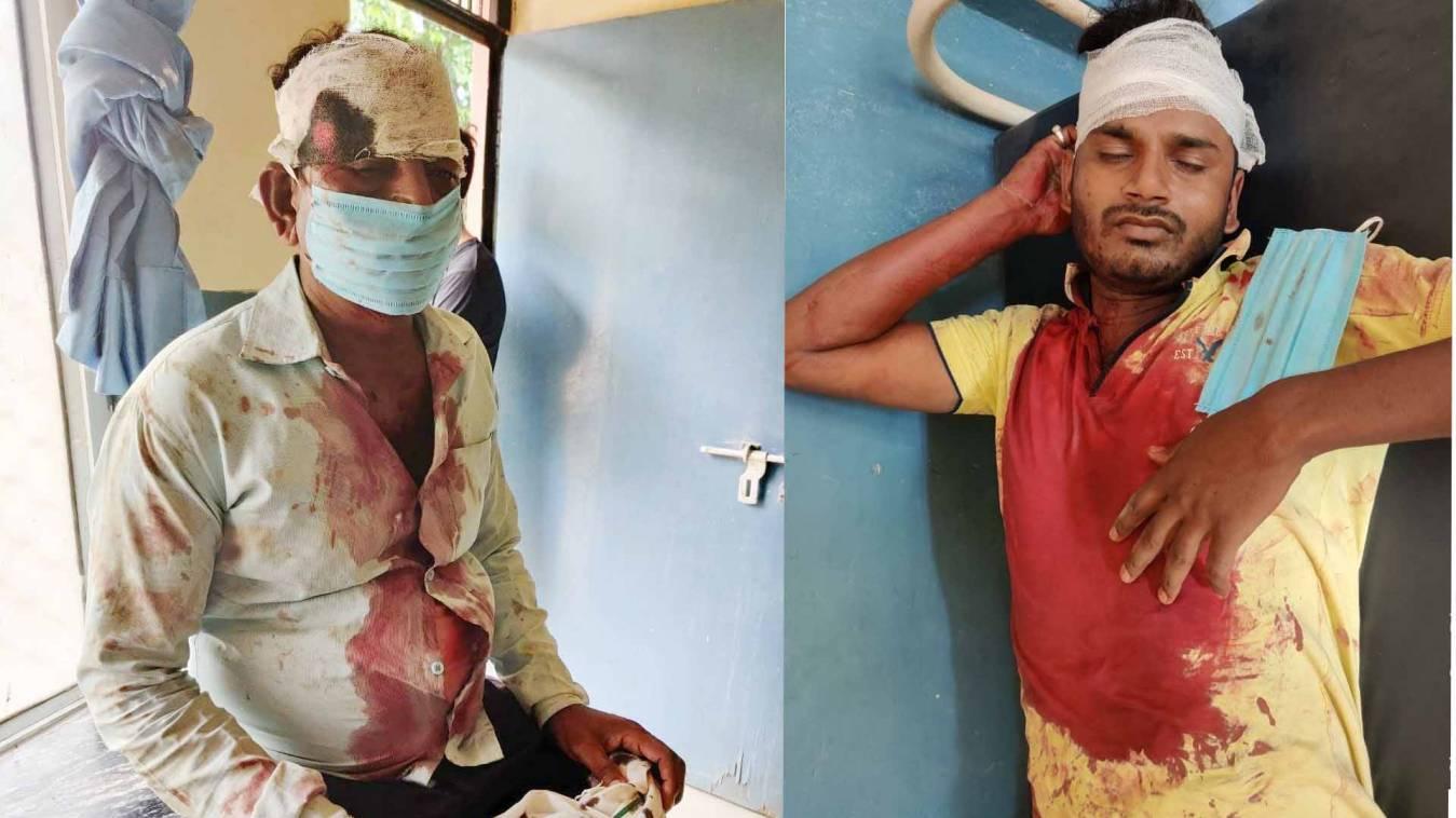 वाराणसी: जमीनी विवाद में दो पक्षों में खूनी संघर्ष, ग्राम प्रधान सहित दर्जनभर हुए घायल